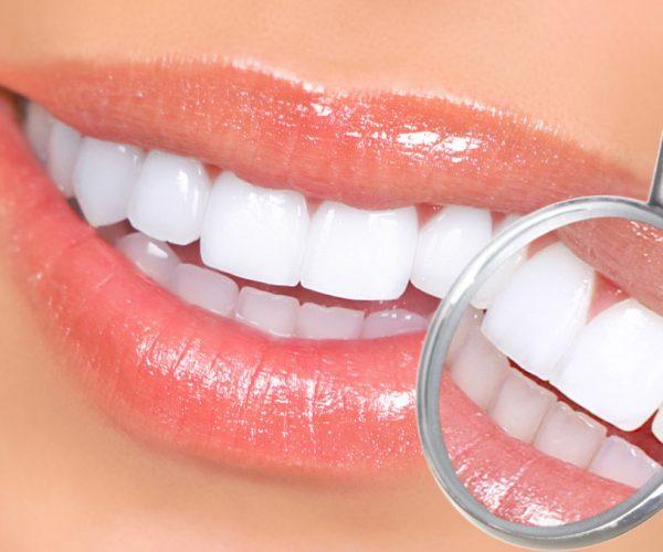 http://dentifelici.it/wp-content/uploads/2015/08/estetika_1-600x500.jpg